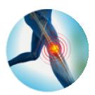 Esguinde de Rodilla, Osteoartrosis