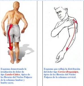 Tres pequeños ajustes que pueden tener un gran impacto en su dolor de espalda baja