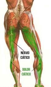ciatica04