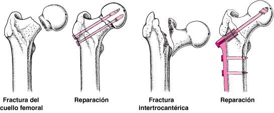 fracturafemuradultomayor04