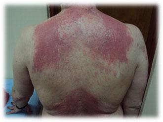 dermatomiositis01
